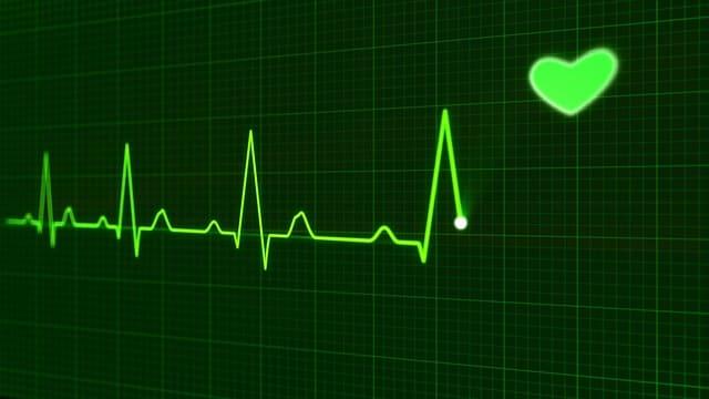 Паралич сердца – причины, симптомы, лечение